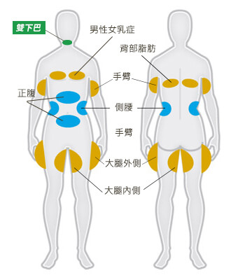 酷思(爾)塑平 CoolSculpting 適合部位