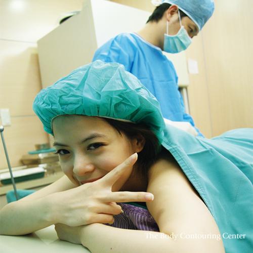 飛塑減脂抽脂手術前