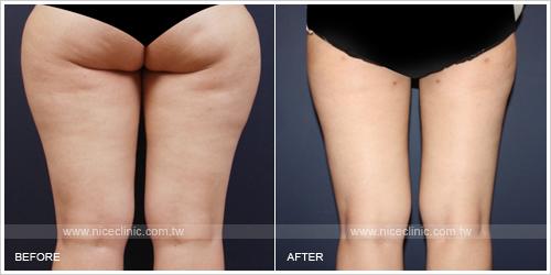 下半身減脂抽脂塑身案例-大腿後面