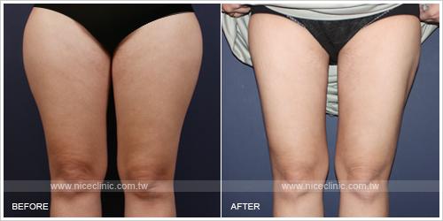 下半身減脂抽脂塑身案例-大腿正面