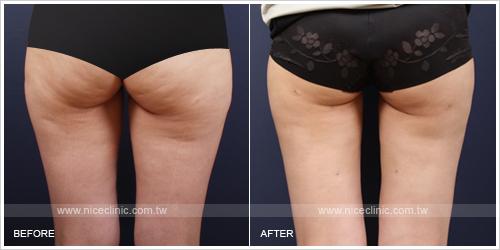 下半身減脂抽脂塑身案例-屁股脂肪減少
