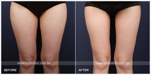 下半身減脂抽脂塑身案例-大腿前則脂肪減少