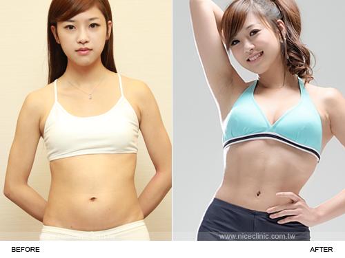 威塑溶脂 威塑雕塑腹直肌馬甲線手術前後比較-1