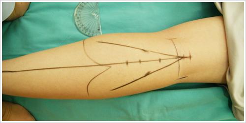 RF電波美腿術