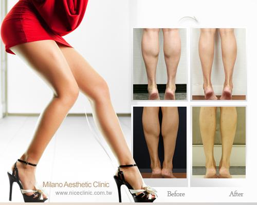 飛塑美腿瘦小腿