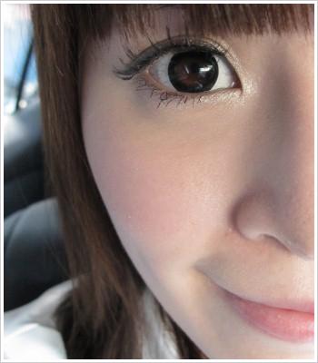 內開式雷射去除眼袋手術,術後五個月照片