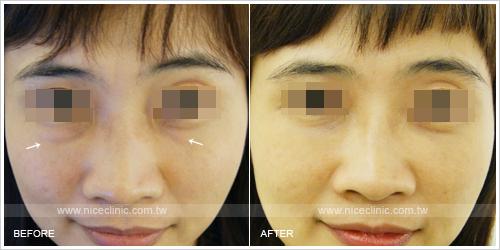 「眼袋手術」前後比一比照片