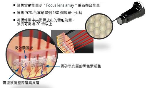 Picosure 皮秒機械光雷射