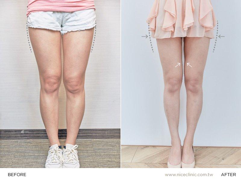 甜美女孩元元和隱痕飛塑® 減脂術後肉肉腿掰掰術後四個月回診的自信成果